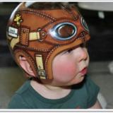 ヘルメット治療とは赤ちゃんに危険?後悔や失敗する前に必要な知識!